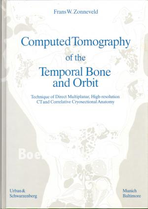 Computed Tomography of the Tempral Bone and Orbit